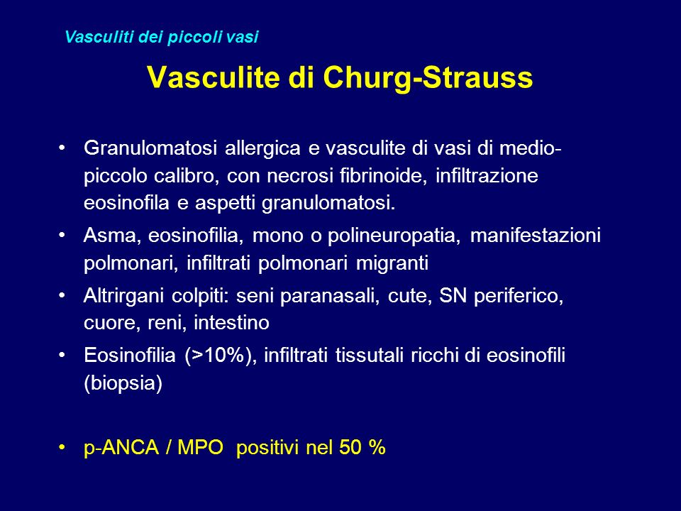 Vasculite di Churg-Strauss