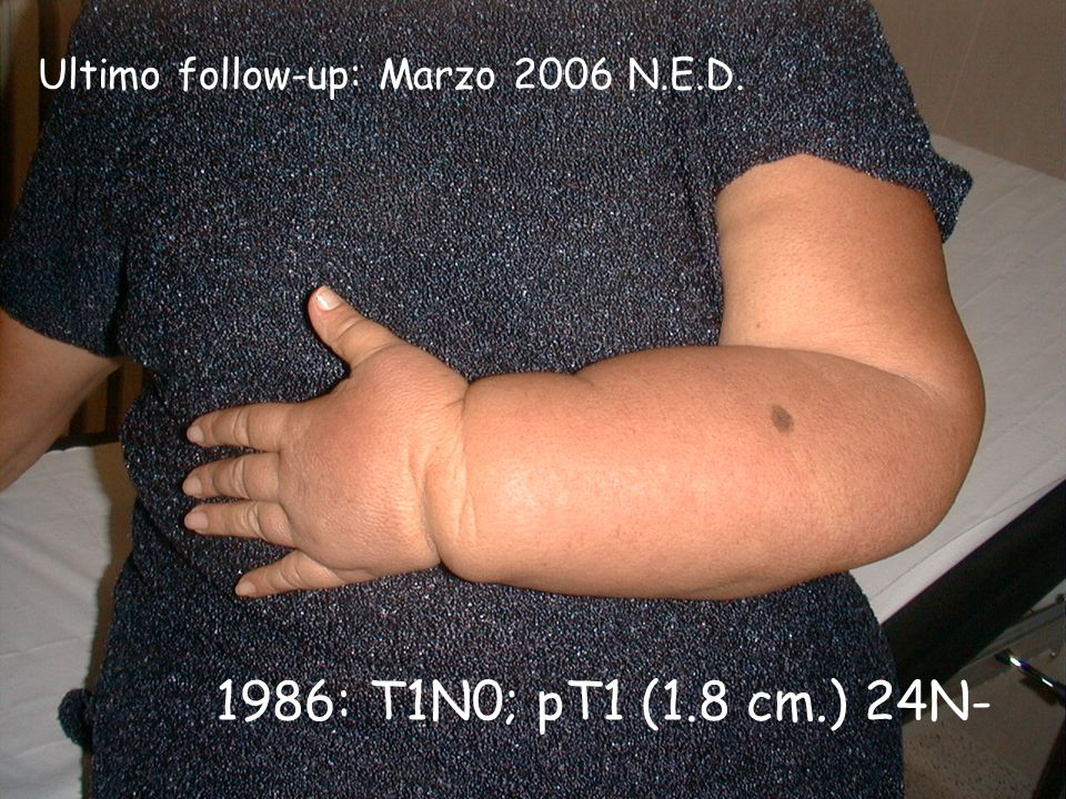 Ultimo follow-up: Marzo 2006 N.E.D.