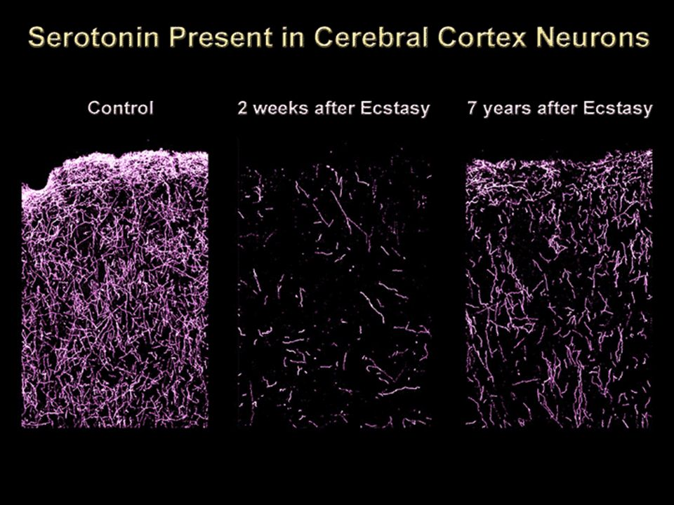 This first slide shows sections taken from the neocortex of monkeys that were given Ecstasy twice a day for 4 days (control monkeys were given saline).