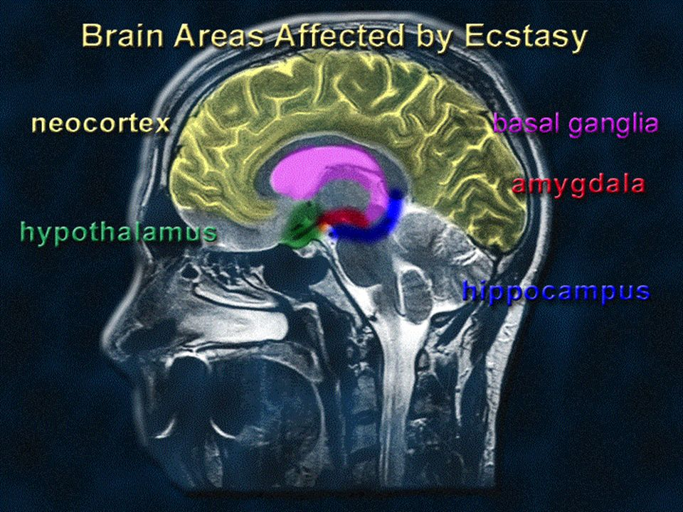 Ecstasy affects cognition (thinking), mood, and memory