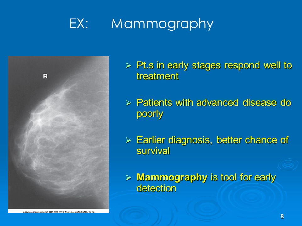 EX: Mammography Pt.s in early stages respond well to treatment