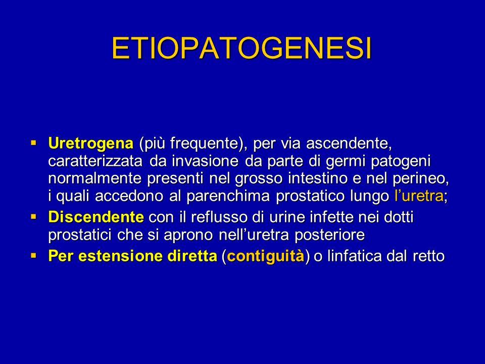 ectasia plesso venoso prostata