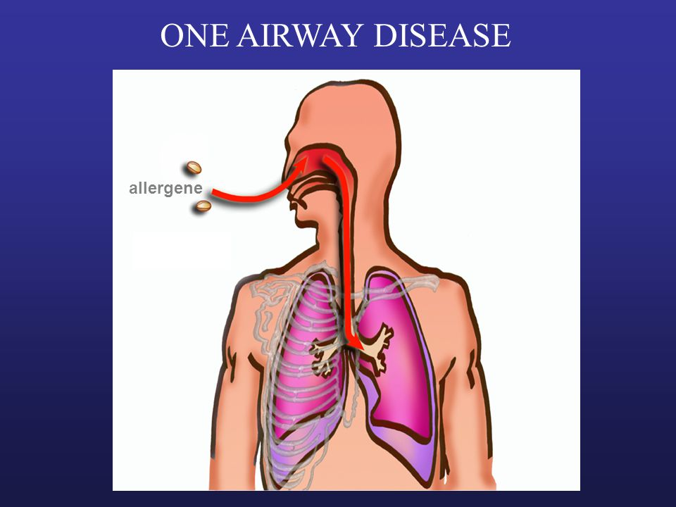 ONE AIRWAY DISEASE allergene