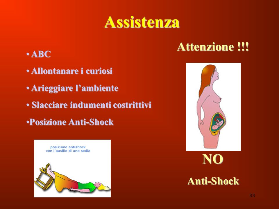 Assistenza NO Attenzione !!! Anti-Shock ABC Allontanare i curiosi