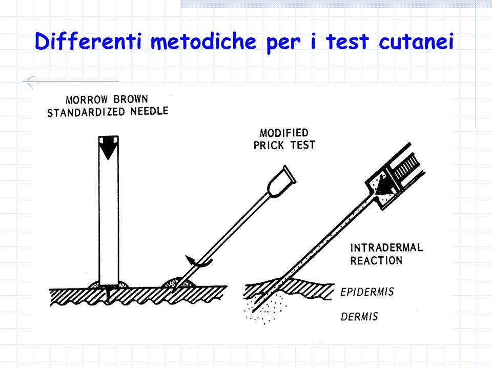Differenti metodiche per i test cutanei