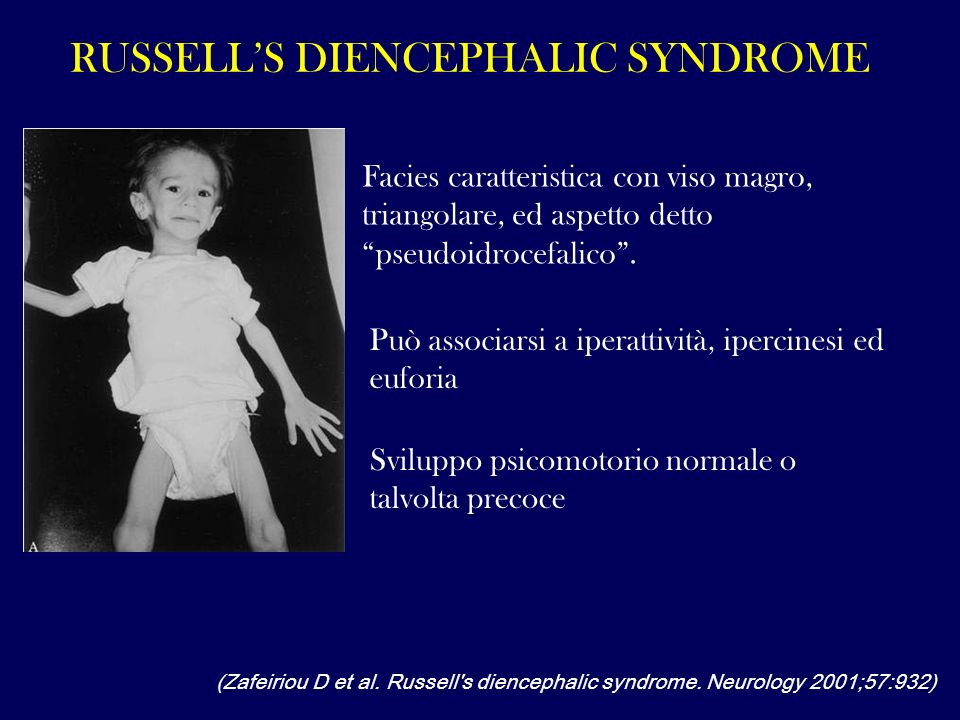Russell's diencephalic syndrome