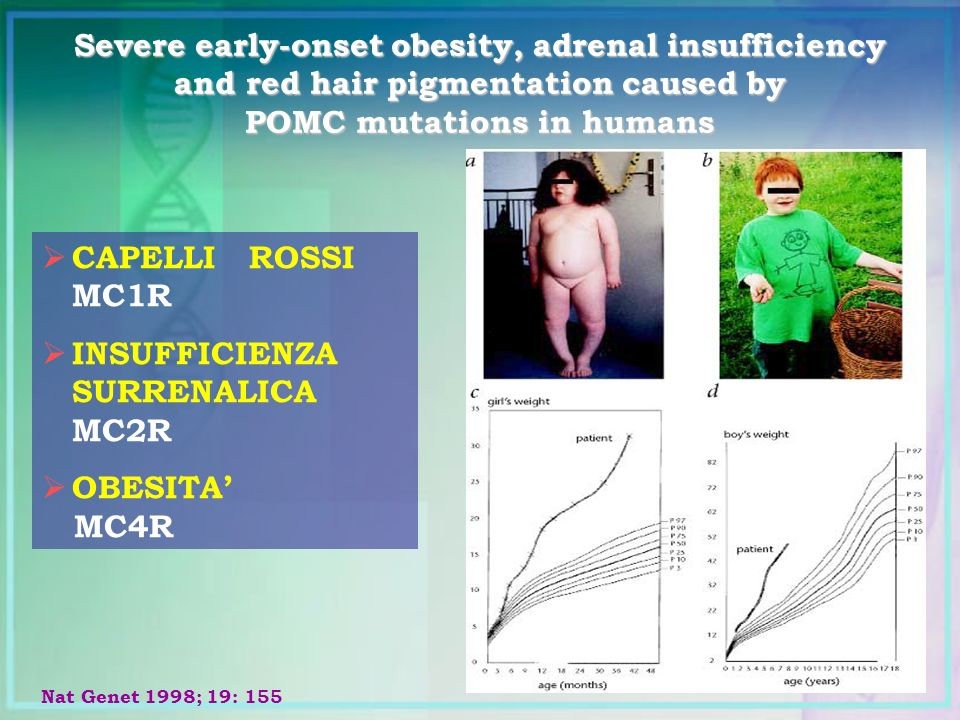 Severe early-onset obesity, adrenal insufficiency