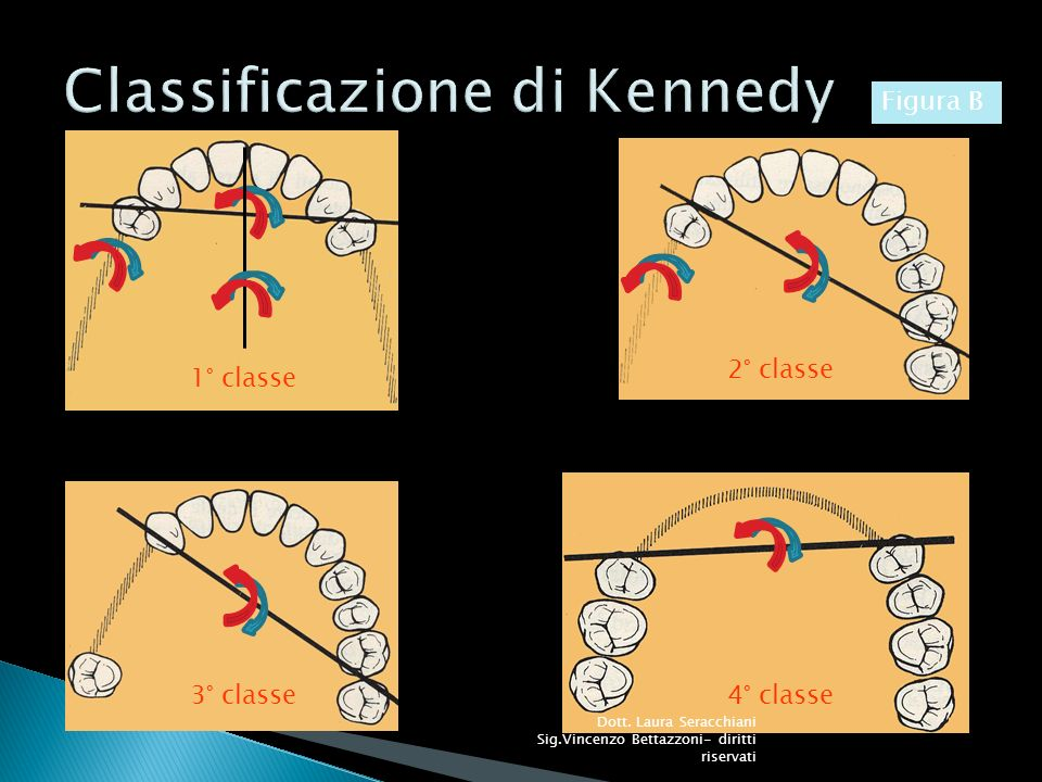Classificazione di Kennedy