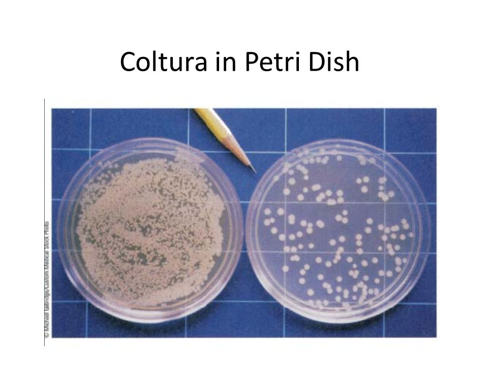 Coltura in Petri Dish