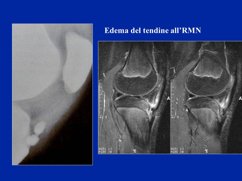 Edema del tendine all'RMN