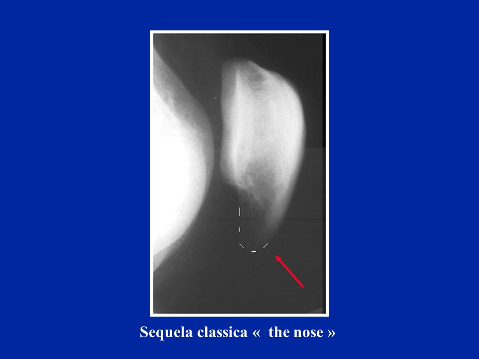 Sequela classica « the nose »