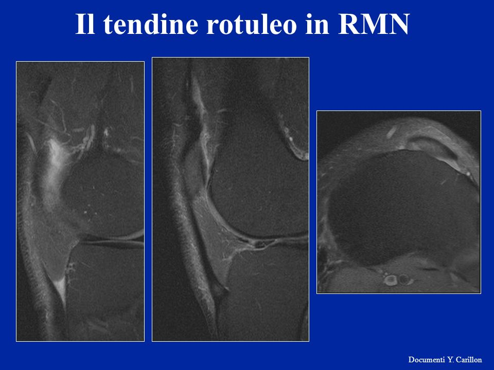Il tendine rotuleo in RMN