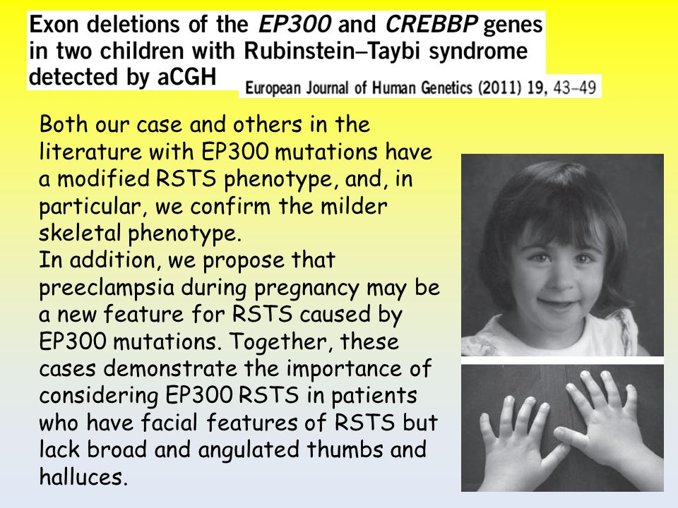Both our case and others in the literature with EP300 mutations have a modified RSTS phenotype, and, in particular, we confirm the milder skeletal phenotype.