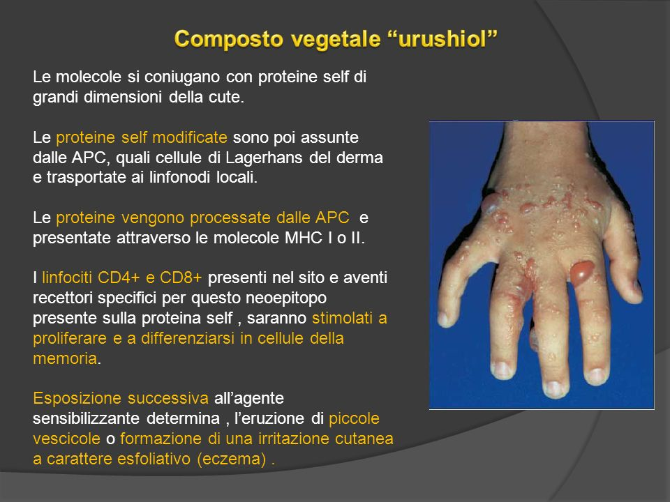 Composto vegetale urushiol